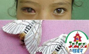 गन्डकि : सेतो पुतलीका कारण आँखामा समस्या ह्वतै बढ्यो